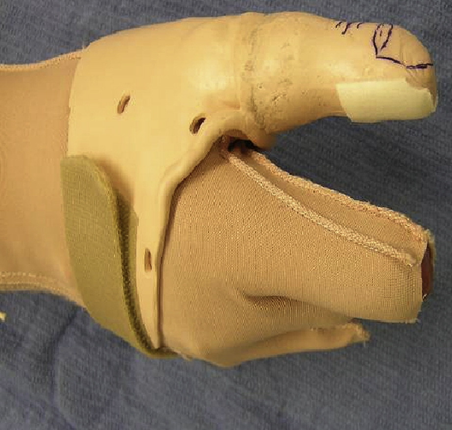 opposition splint for partial thumb amputation  a case